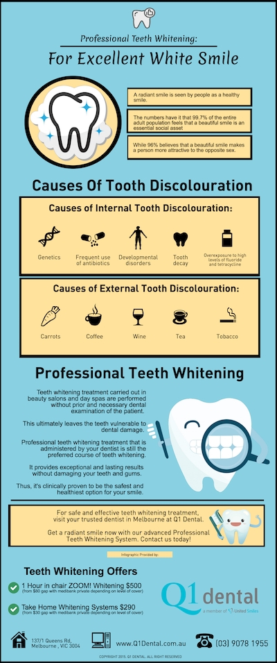 Professional Teeth Whitening For Excellent White Smile