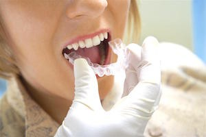 Adult Braces- You're Never Too Old for a Straighter Smile - Melbourne dentist