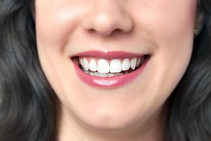 Five Advantages of Porcelain Veneers in Melbourne