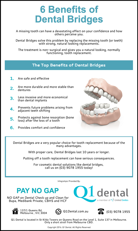 6-Benefits-of-Dental-Bridges
