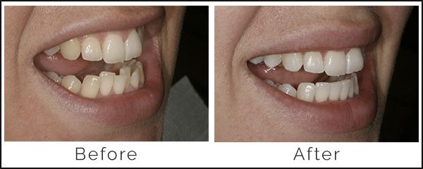 Inman Aligner Before and After | Q1 Dental - Dentist Melbourne